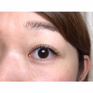 black eye*